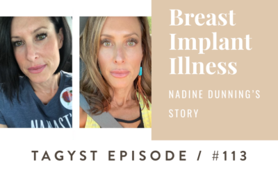 #113: Breast Implant Illness – Nadine Dunning's Story